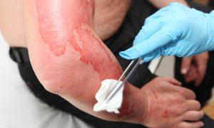 burn-injuries